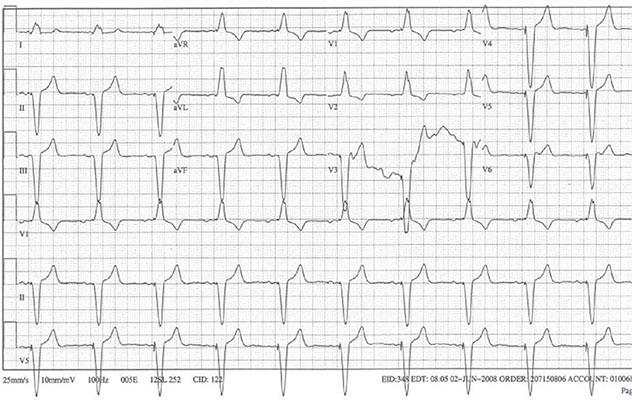 Diagram shows ECH diagnostic criteria of atrial sensed and ventricular paced rhythm.