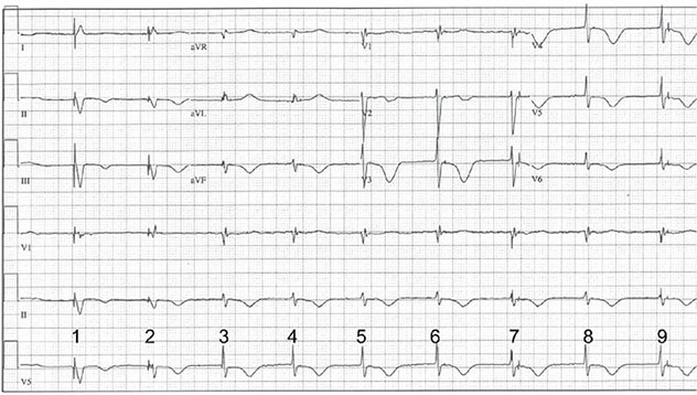 Diagram shows ECH diagnostic criteria of VOO pacing with pacer competing with junctional rhythm.