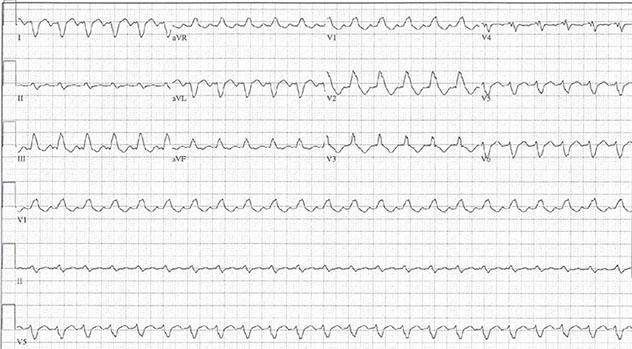 Diagram shows ECH diagnostic criteria of complex tachycardia having monophasic RBBB pattern.