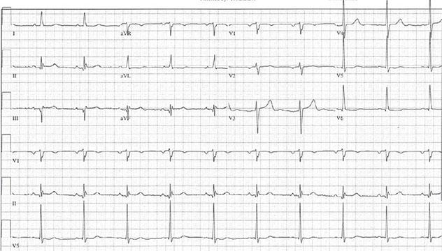 Diagram shows ECH diagnostic criteria of normal electrocardiogram.