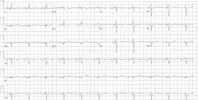 Diagram shows ECH diagnostic criteria of dual-chamber pacing where V-spike is before QRS.