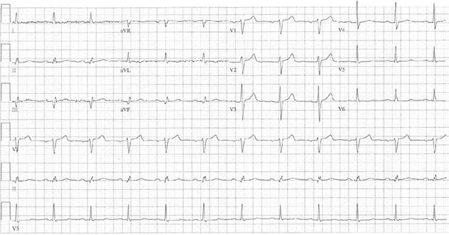 Diagram shows ECH diagnostic criteria of inferior myocardial infarction.