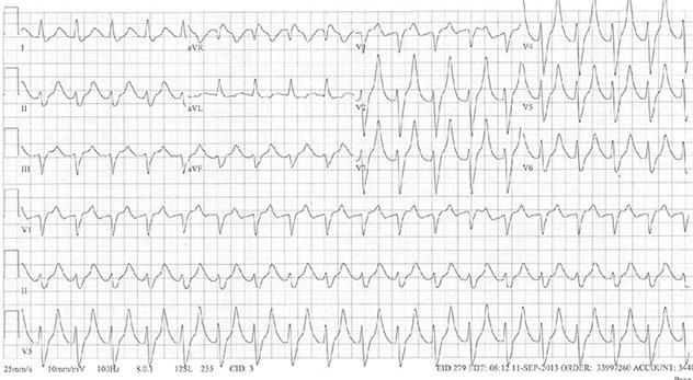 Diagram shows ECH diagnostic criteria of severe hyperkalemia near sine wave appearance.