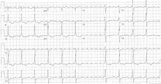 Diagram shows ECH diagnostic criteria of atrial tachycardia with variable block.