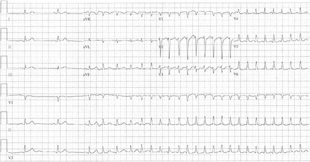 Diagram shows ECH diagnostic criteria of paroxysmal atrial fibrillation having rapid ventricular response.