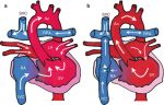Ventricle Physiology