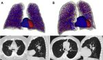 Computerized Chest Imaging in the Diagnosis and Assessment of the Patient with Chronic Obstructive Pulmonary Disease