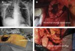 Management of Complications After Lung Resection