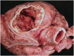Chapter 4 – Congenital Heart Disease (I)