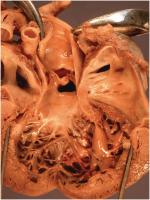 Chapter 7 – Cardiomyopathy