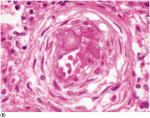 Chapter 9 – The Coronary Arteries