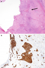 10: Chronic Thrombus and Metastatic Cancer—An Unexpected CTEPH Mimic