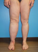 Treatment of Lymphedema: Vascularized Omental Lymphatic Transfer