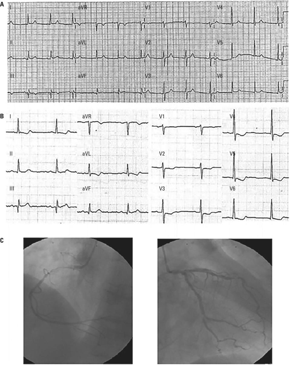 Schematic illustration of (A) ECG without pain. (B) ECG during pain in the course of NSTE-ACS. (C) Coronary angiography shows three-vessel disease.