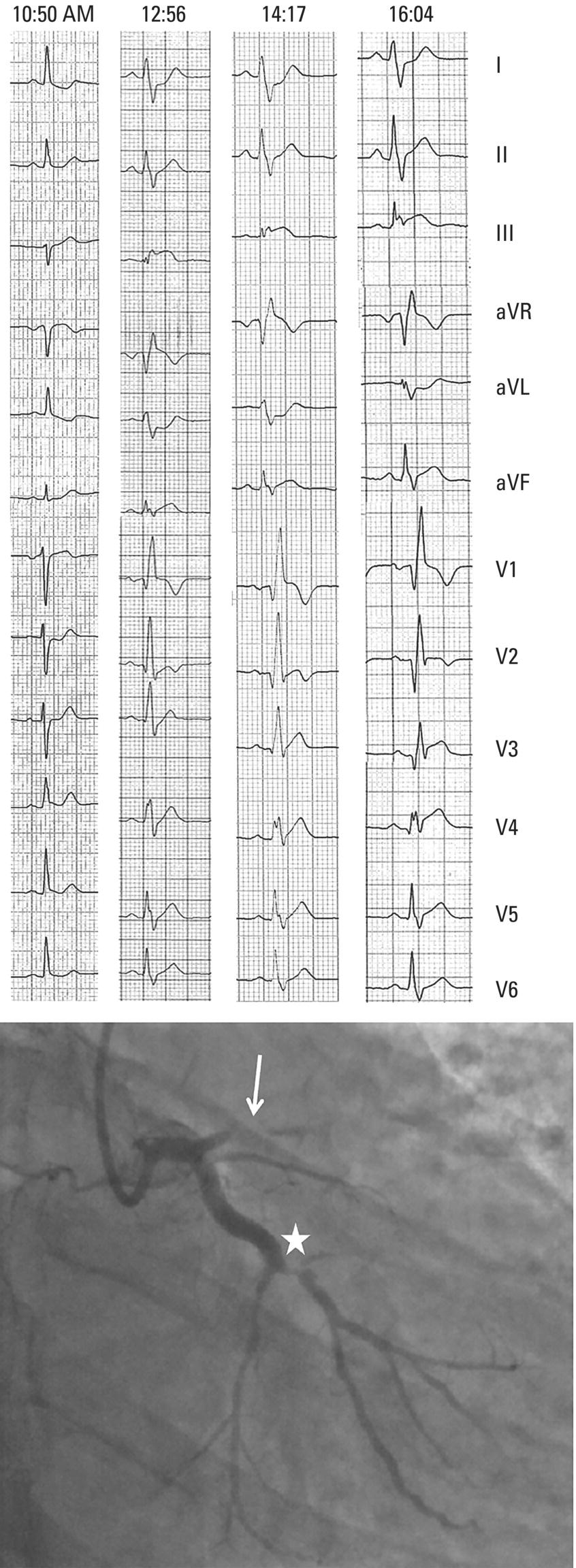 Schematic illustration of a 46-year-old man who presented to a health center for chest pain that started one hour before (at 9 AM). .