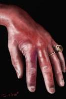 erysipeloide main rouget du porc