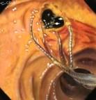 angiocholite endoscopie lithiase choledoque