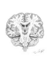 coupe cerveau Charcot modifie