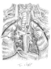 mediastin posterieur dissection