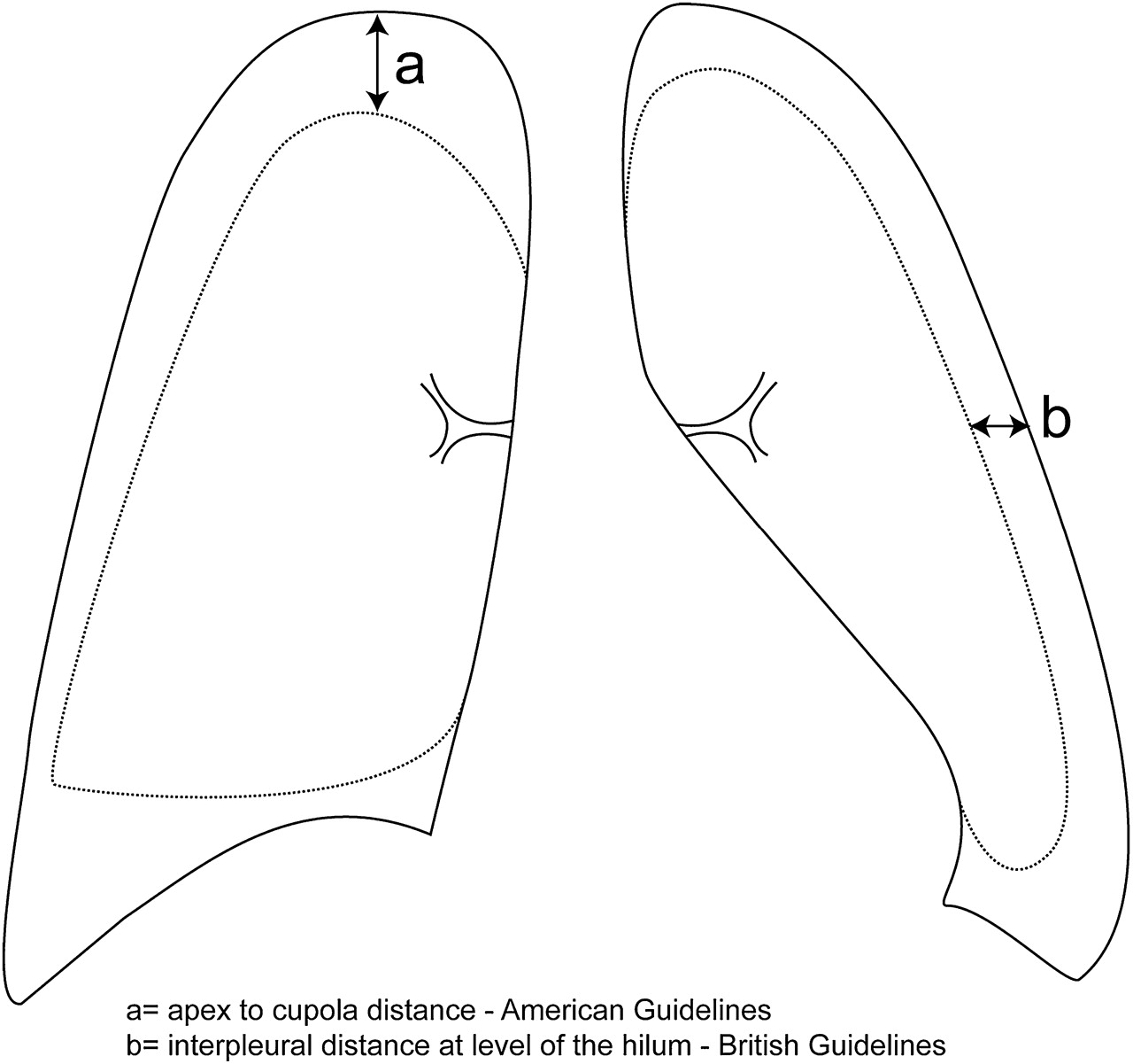 Management Of Spontaneous Pneumothorax British Thoracic