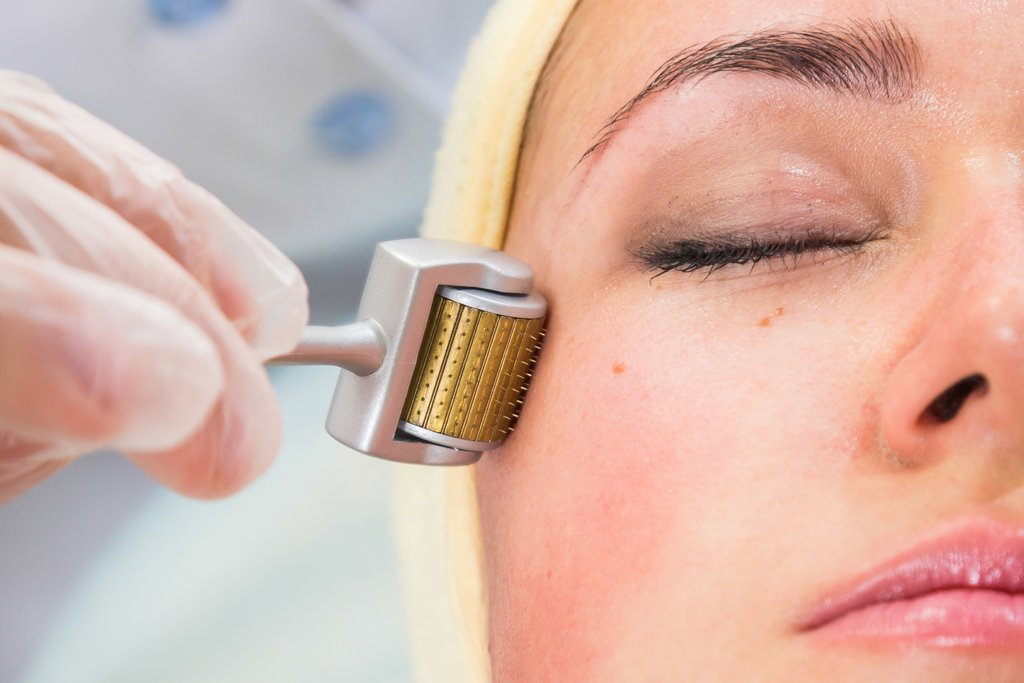 all-you-need-to-know-about-a-home-derma-roller-charlotte-george-thoselondonchicks-beauty