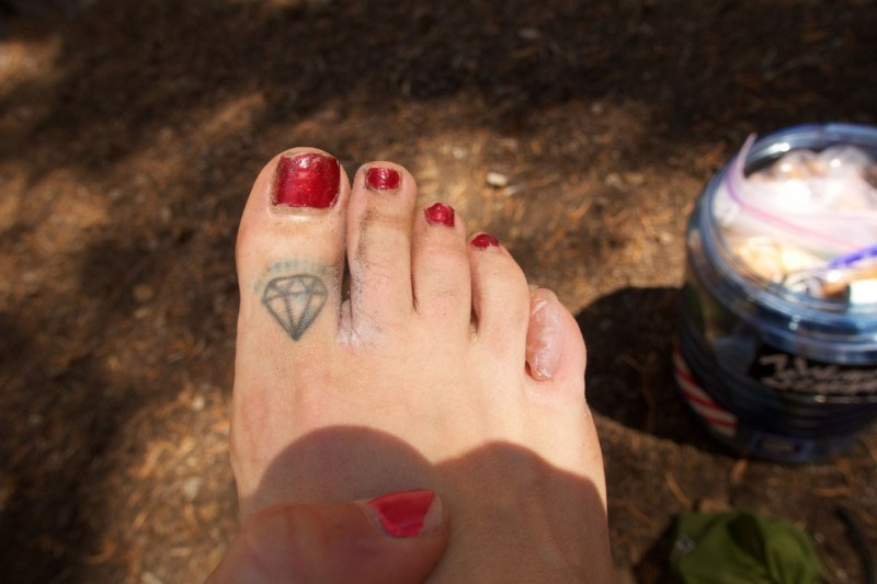 """For your viewing pleasure: My filthy feet and my faithful """"6th toe blister"""""""