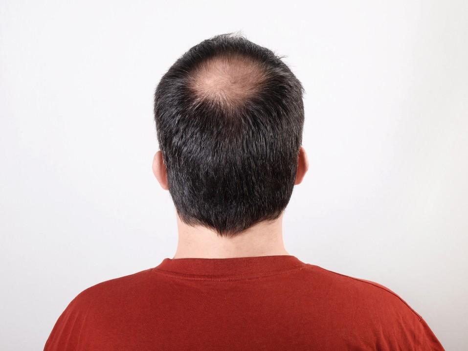 can smoking cannabis cause hair loss?