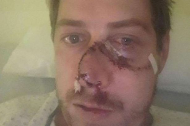 deer rips off hunter's face as he tries to shoot it
