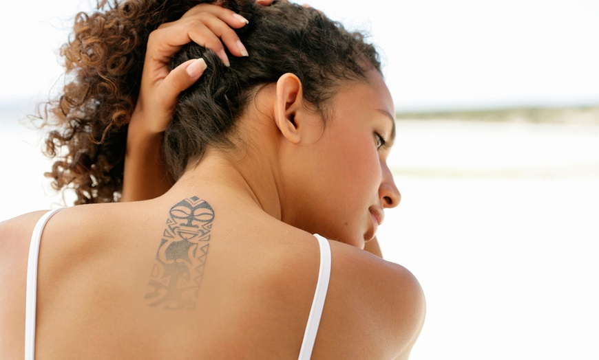 Remove A Tattoo At Home In 6 Easy Ways