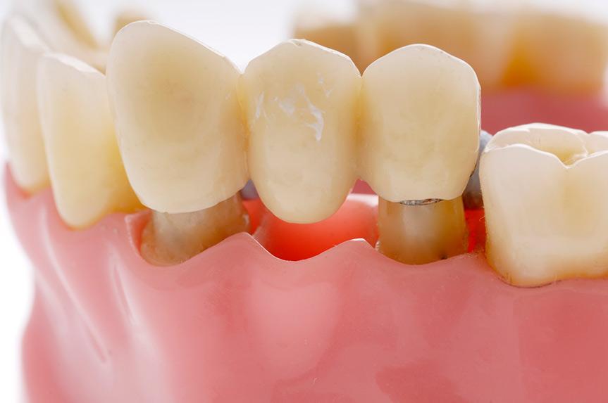 dental bridge murfreesboro tn