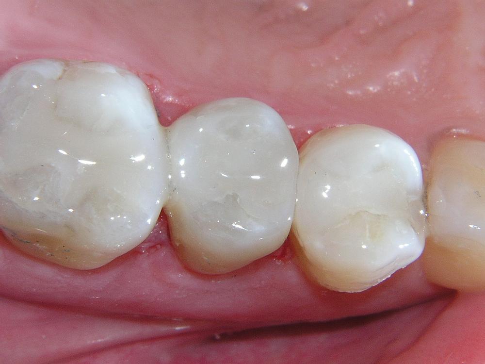 dental fillings murfreesboro tn