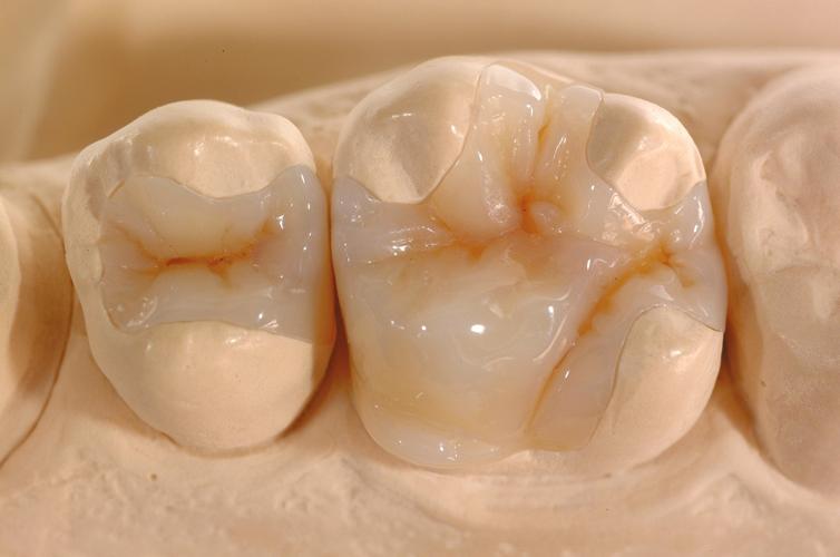 dental inlays/onlays murfreesboro tn