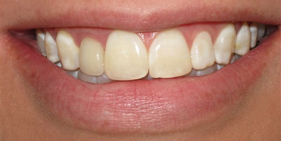 dental veneers murfreesboro tn