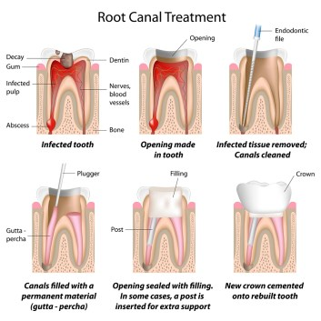 root canal treatments murfreesboro tn