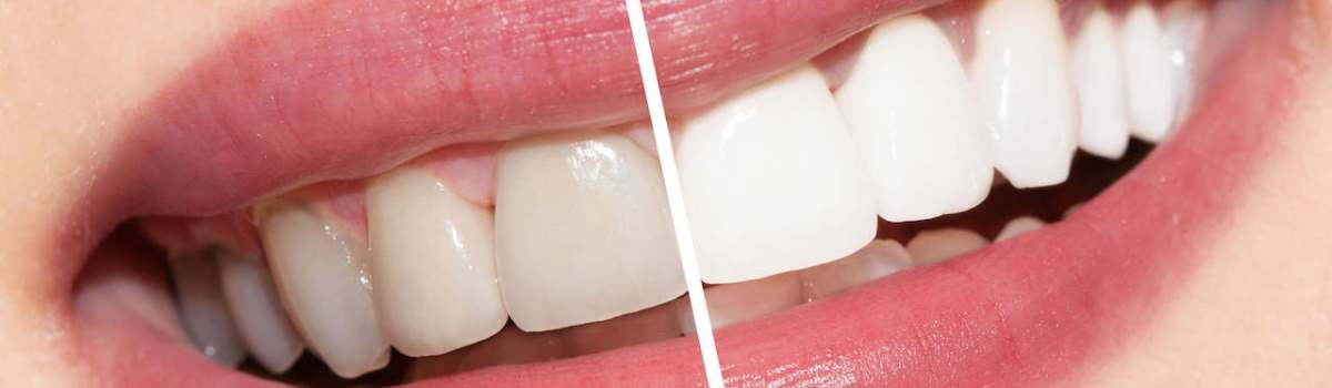 teeth whitening murfreesboro tn