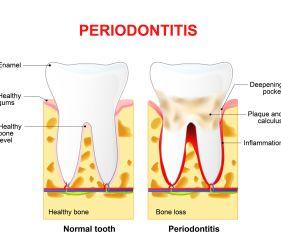 Regular Dental Cleaning vs. Deep Cleaning