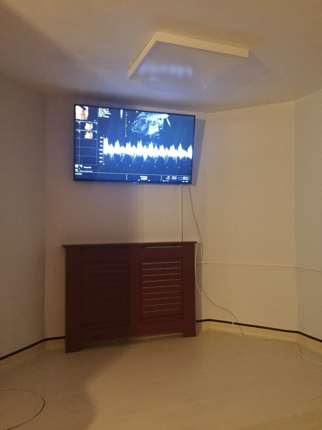 flat screen tv with heart rate