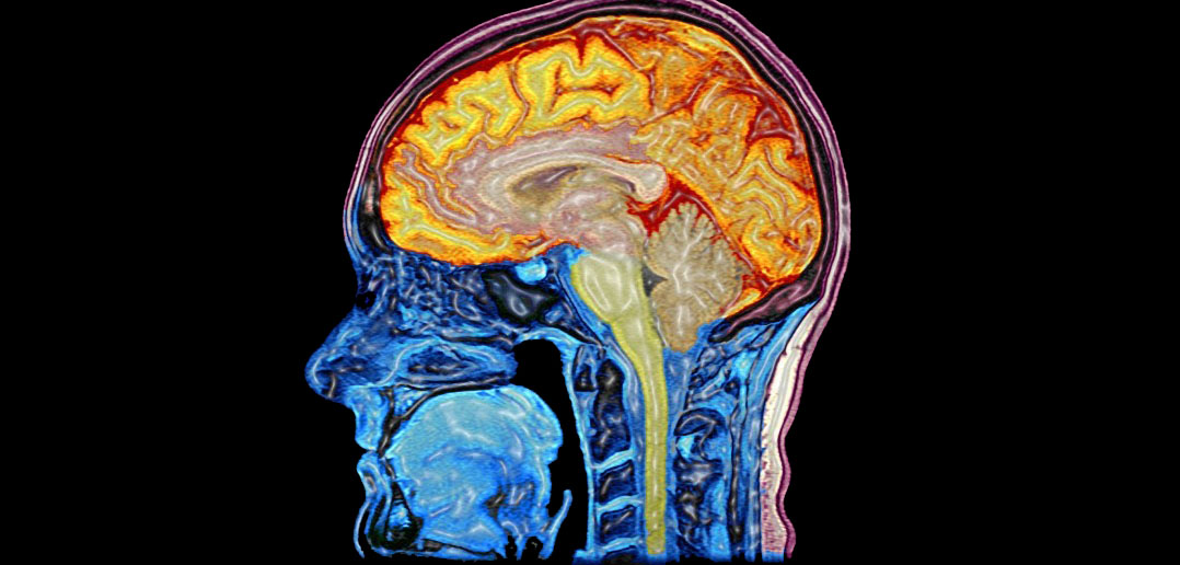 What-is-addiction-how-does-it-affect-brain-body_thrive-holistic-nutrition?