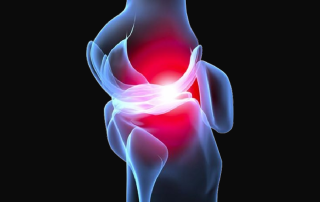 nutrition-for-preventing-or-managing-osteoarthritis_thrive-holistic-nutrition