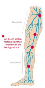 thrombose symptome vorbeugung