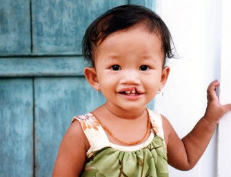 Bill Magee: Operation Smile