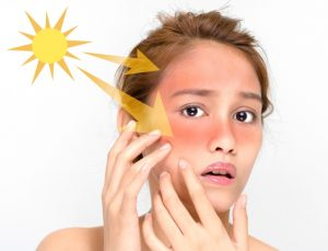 Three Home Remedies For Dark Spots And Uneven Skin Tone