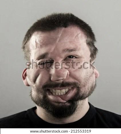 Ugly Man Fat Cheeks Beard Portrait Stock Photo Royalty
