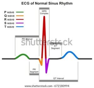 ECG Normal Sinus Rhythm Infographic Diagram Stock Vector