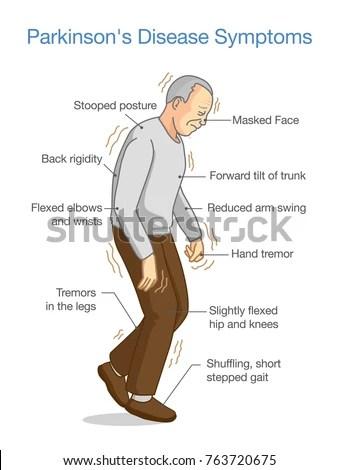 Parkinsons Disease Symptoms Illustration About Health ...