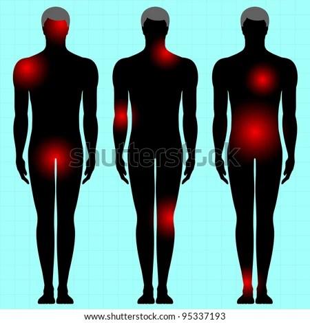 Human Body Area Pain Stock Vector 95337193 - Shutterstock