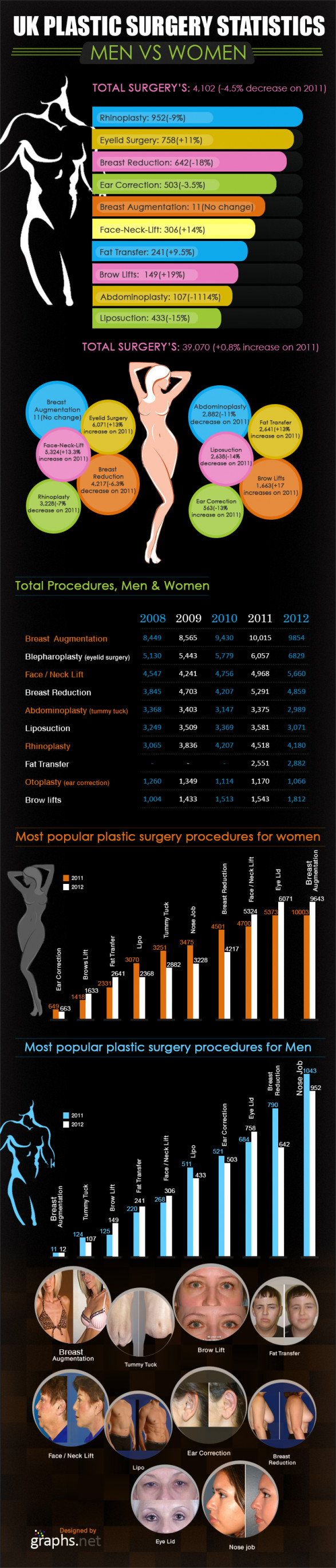 Statistic of Plastic surgery in UK