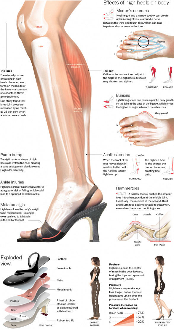 The True Effect of High Heels