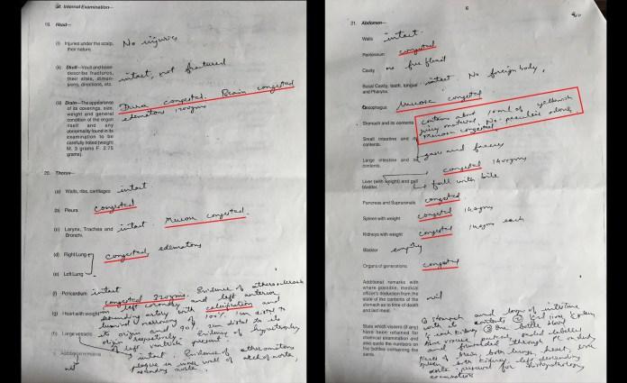 पोस्टमॉर्टम रिपोर्ट में लोया के कई अंगों में अवरोध की बात की गई है