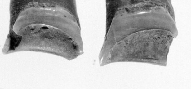 Worn-Out Teeth Show Ancient Egyptian Craftswoman
